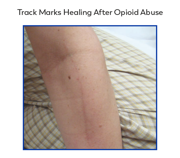 Partially healed opioid track marks
