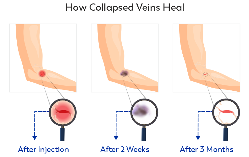 The healing process of a collapsed vein from IV drug use
