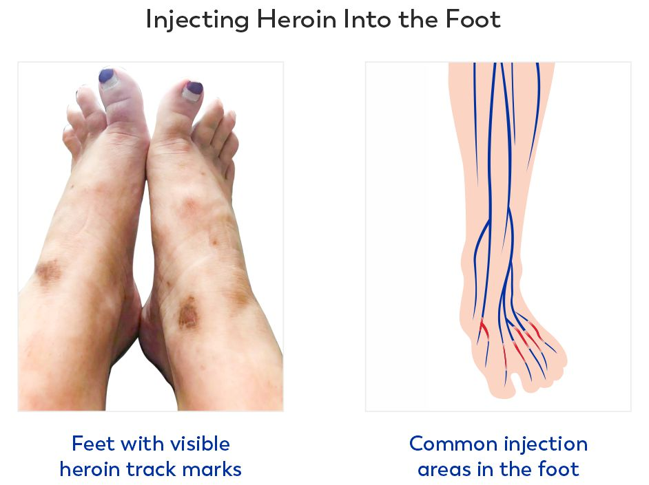 Injecting heroin into the feet can cause a collapsed vein in foot