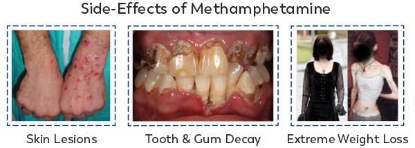 Side effects of meth include skin lesions, tooth decay and extreme weight loss