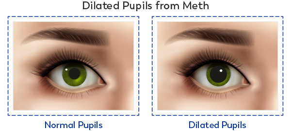 Two eyes comparing dilated pupils after using meth